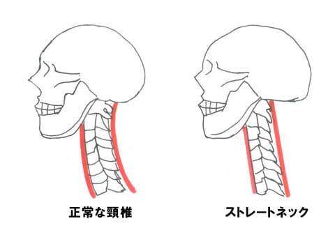 ストレートネックのイメージイラスト。右の骨がほぼ真っ直ぐになっているのがわかる